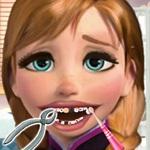 Anna Frozen At The Dentist